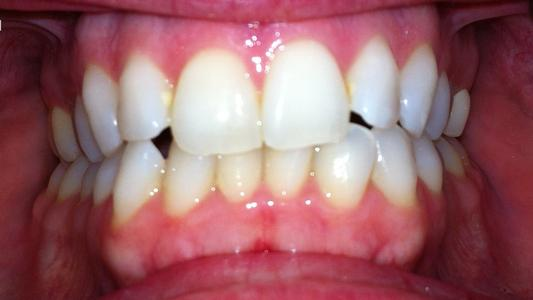 Before Invisalign at Fleischmann Family Dentistry in Broomfield, CO