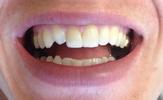Before simple bonding with an extra canine tooth at Fleischmann Family Dentistry in Broomfield, CO