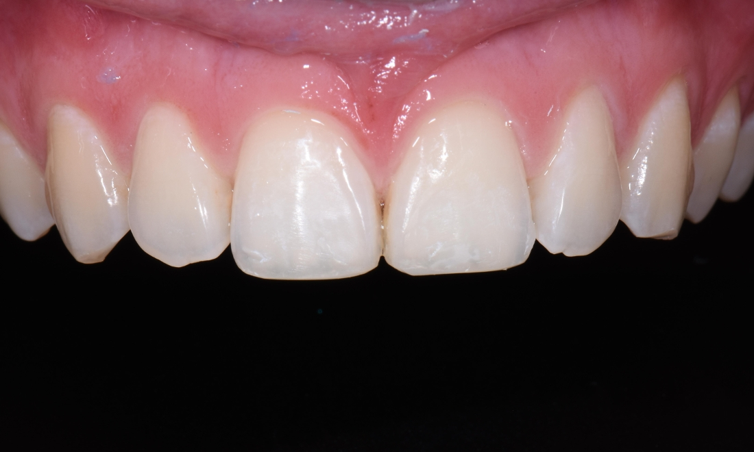 Composite Bonding to Improved Chipped Teeth