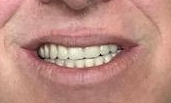 After full implant-dentures | Fleischmann Dentistry | Broomfield, CO