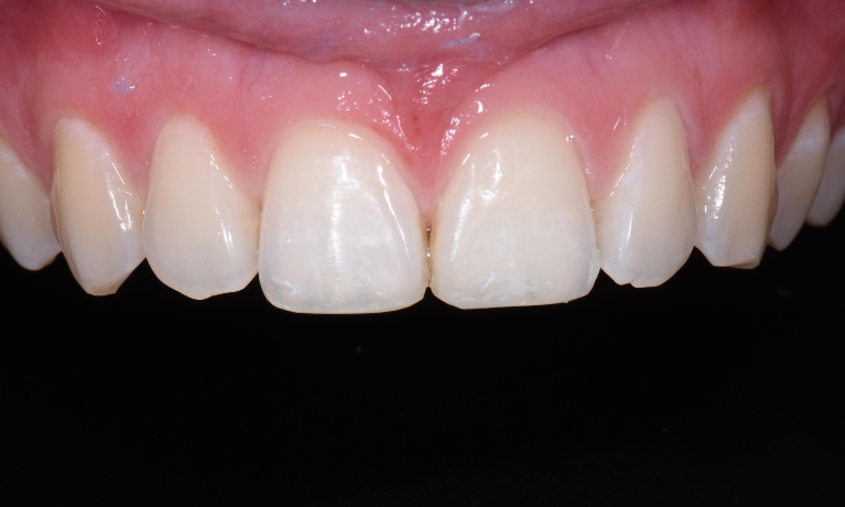 Composite-Bonding-to-Improved-Chipped-Teeth-After-Image