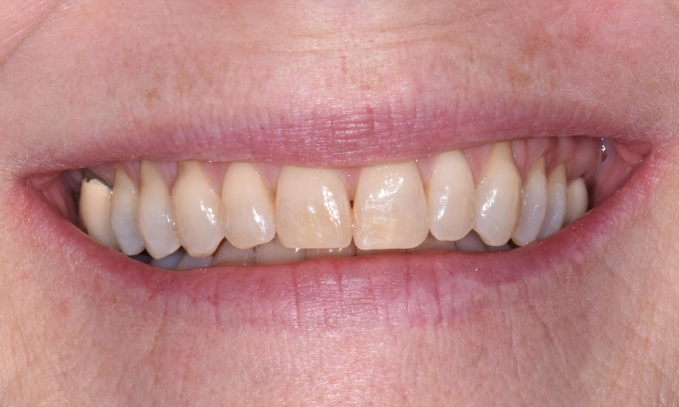 Invisalign-4-month-Treatment-After-Image