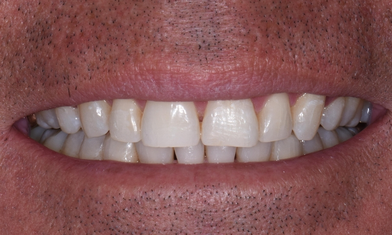 Invisalign-5-month-Treatment-with-Whitening-After-Image