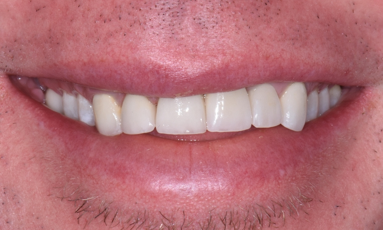 Invisalign-and-Porcelain-Crowns-to-correct-Uneven-Gum-Line-After-Image