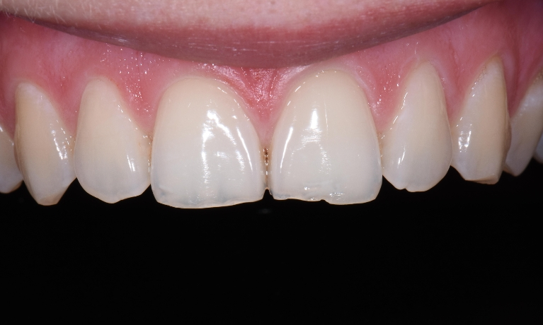 Composite-Bonding-to-Improved-Chipped-Teeth-Before-Image