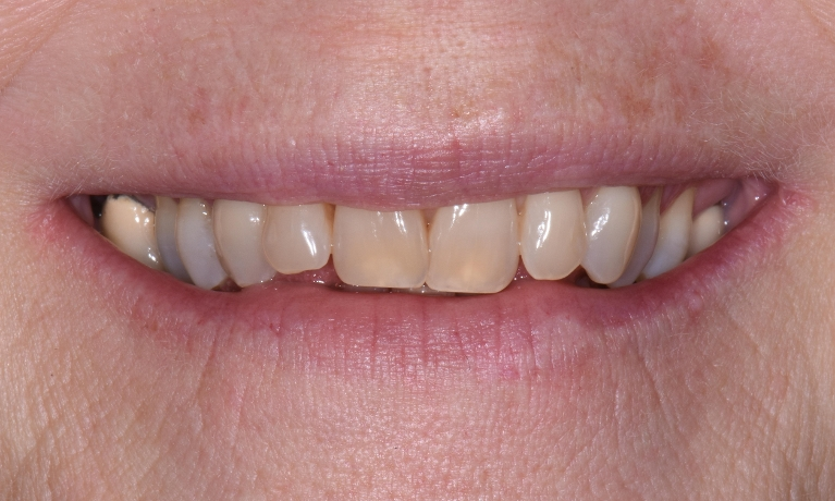 Invisalign-4-month-Treatment-Before-Image